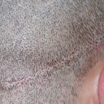 Scar revision on scalp